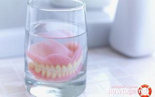 Акриловые протезы для зубов: плюсы и минусы, особенности конструкции