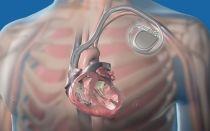 Плюсы и минусы установки кардиостимулятора сердца: функции устройства и показания к операции