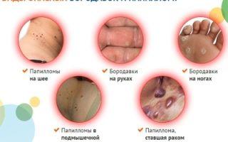 Стоит ли удалять бородавки у детей: виды новообразований и последствия процедуры