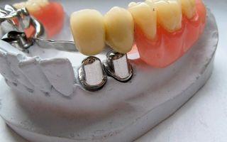 Бюгельные съемные зубные протезы: плюсы и минусы системы