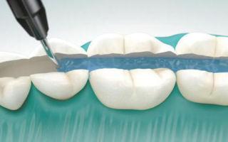 Шинирование зубов — материалы и виды, плюсы и минусы метода
