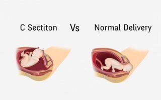 Кесарево сечение —  плюсы и минусы процедуры