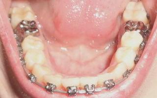 Нужно ли человеку лечить зуб мудрости: все аргументы «за» и «против»