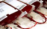 Сдача крови: плюсы и минусы для организма, возможные побочные эффекты