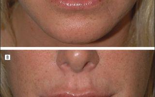 Стоит ли увеличивать губы: плюсы, минусы, нюансы и фото до и после