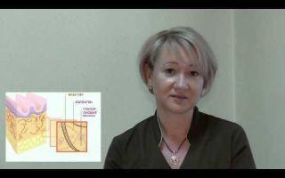 Плюсы и минусы использования гиалуроновой кислоты: отзывы покупателей и мнение косметологов