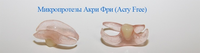 Протезы acry-free: плюсы и недостатки