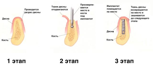 Плюсы и минусы одномоментной имплантации зубов