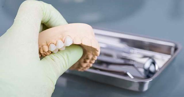 Плюсы и минусы мостовидных протезов