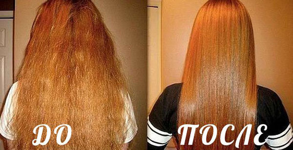 Никотиновая кислота для волос польза и вред