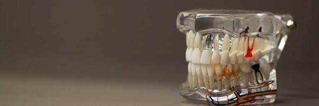 Профессия зубной техник — специфика, плюсы и минусы