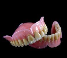Зубной протез на присосках: плюсы, минусы и особенности