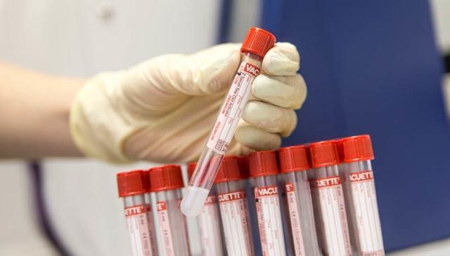 Стоит ли сдавать кровь на онкомаркеры?