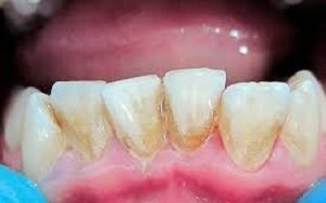 Звуковая электрическая зубная щетка — плюсы и минусы покупки