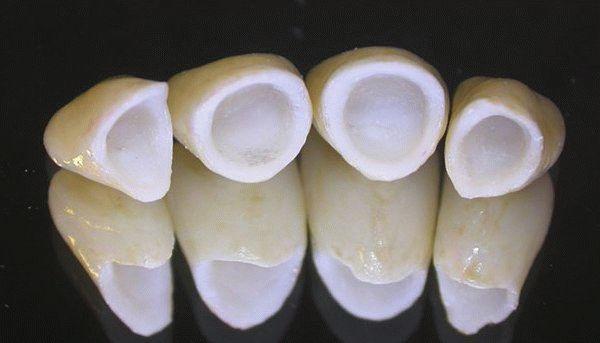 Металлокерамические коронки: плюсы и минусы выбора