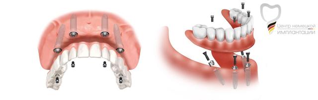 Имплантация all on 4: что это, плюсы и минусы метода