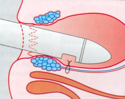 Стоит ли делать дезартеризацию геморроидальных узлов?