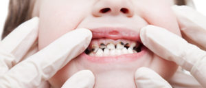 Нужно ли лечить молочные зубы у детей?