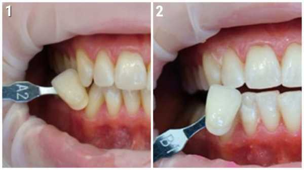 Лазерное отбеливание зубов — плюсы и минусы процедуры