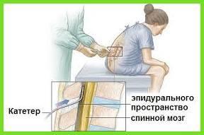 Эпидуральная анестезия – плюсы и минусы процедуры