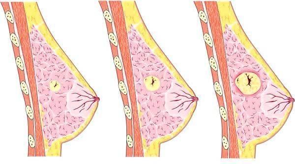 Стоит ли удалять фиброаденому молочной железы?
