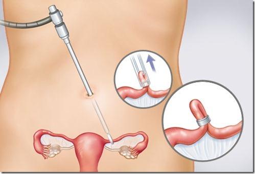 Перевязка маточных труб: плюсы и минусы операции