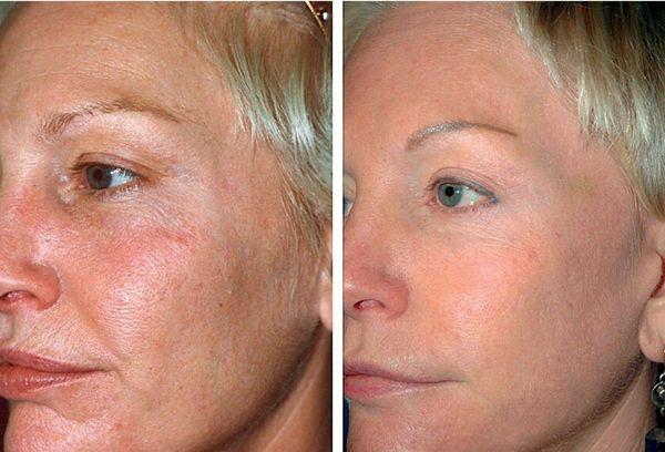 Лазерная шлифовка лица — плюсы и минусы процедуры