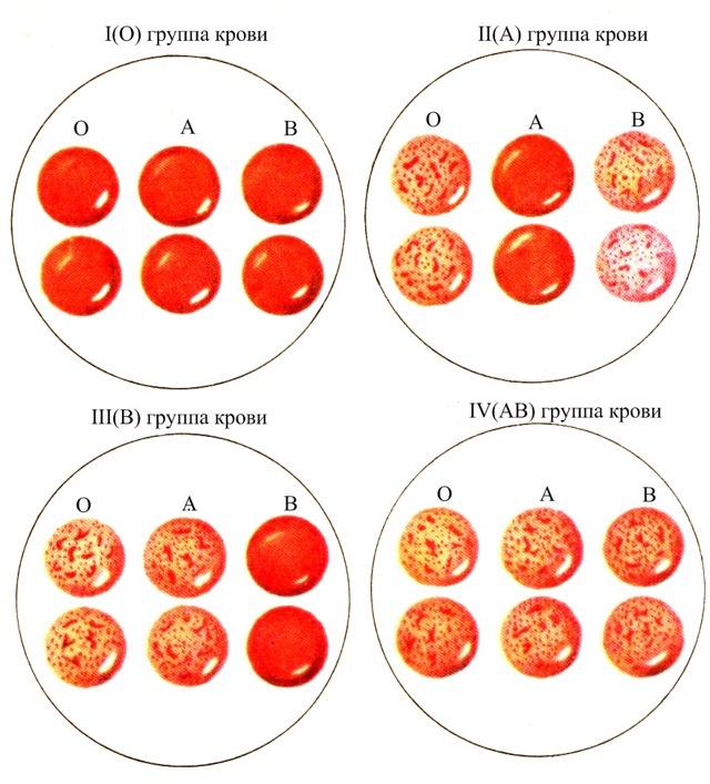 Четвертая отрицательная группа крови: плюсы и минусы