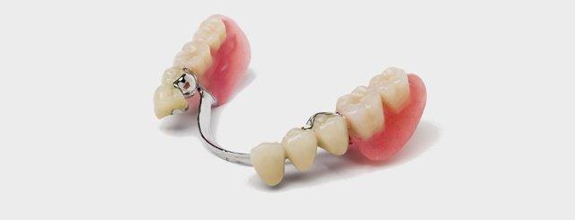 Бюгельные съемные зубные протезы: плюсы и минусы