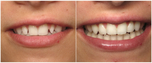 Шинирование зубов — плюсы и минусы метода
