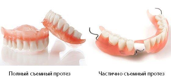 Акриловые протезы для зубов: плюсы и минусы