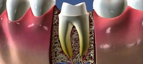 Стоит ли заменять мертвые передние зубы коронками?