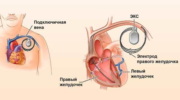 Плюсы и минусы установки кардиостимулятора сердца