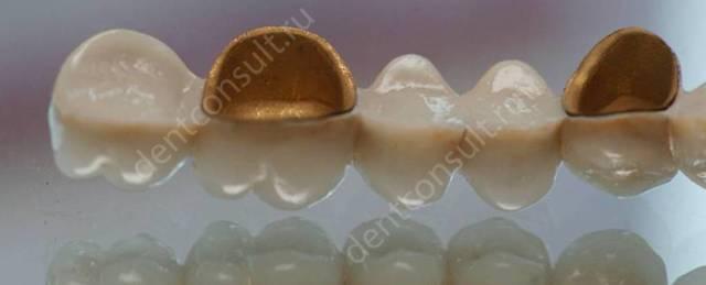 Пластмассовые протезы: плюсы, минусы и особенности