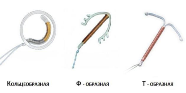 Плюсы и минусы противозачаточной спирали