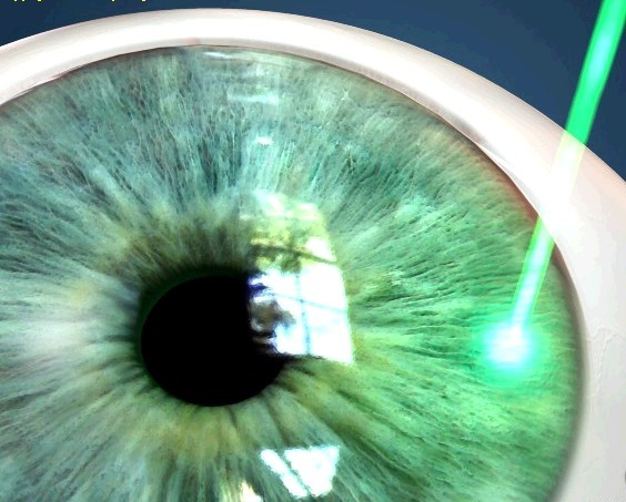 Лечение глаукомы лазером — плюсы и минусы методы