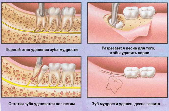 Нужно ли человеку лечить зуб мудрости?