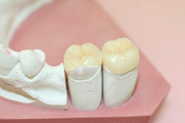 Керамическая вкладка на зуб: плюсы и минусы