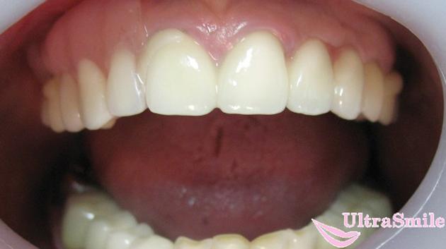 Ацеталовый зубной протез: плюсы и минусы выбора