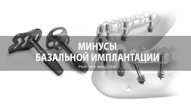 Плюсы и минусы базальной имплантации