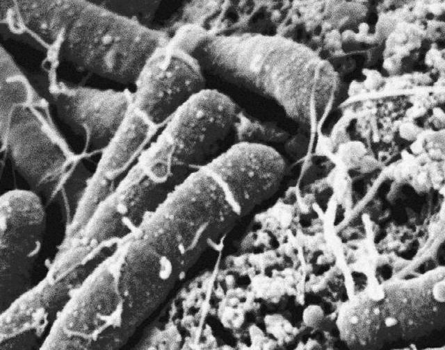 Плюсы и минусы бактерий — особенности и значение