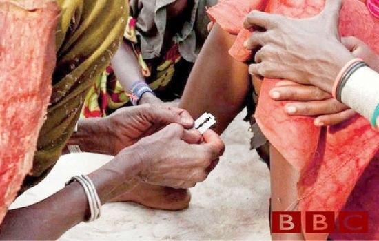 Обрезание у мужчин: плюсы, минусы и что нужно знать