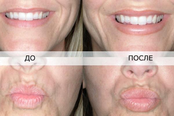 Стоит ли увеличивать губы: плюсы, минусы, нюансы