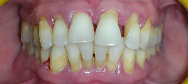 Резекция верхушки корня зуба — плюсы и минусы процедуры