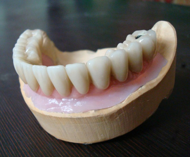 Плюсы и минусы зубов из металлопластика
