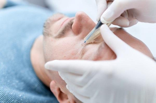 Лазерное удаление бородавок: плюсы и минусы метода
